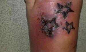 Tatuaggio a 25 euro